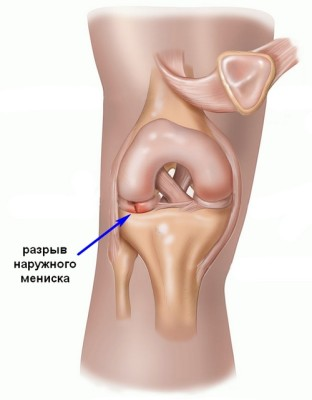 external-meniscus-tear