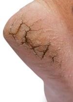 Как избавиться от трещин на пятках