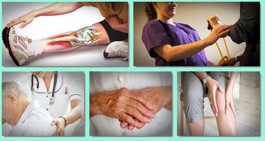 how-to-treat-arthritis