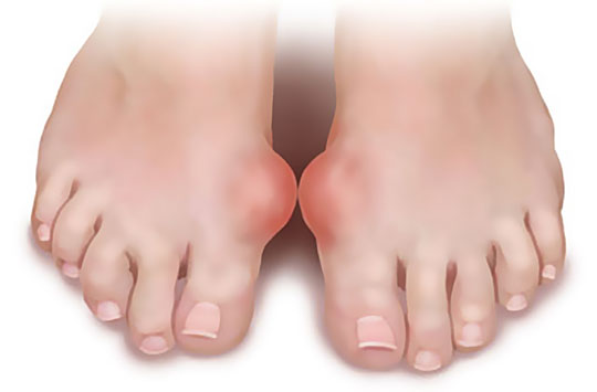 treatment-of-folk-remedies-gout