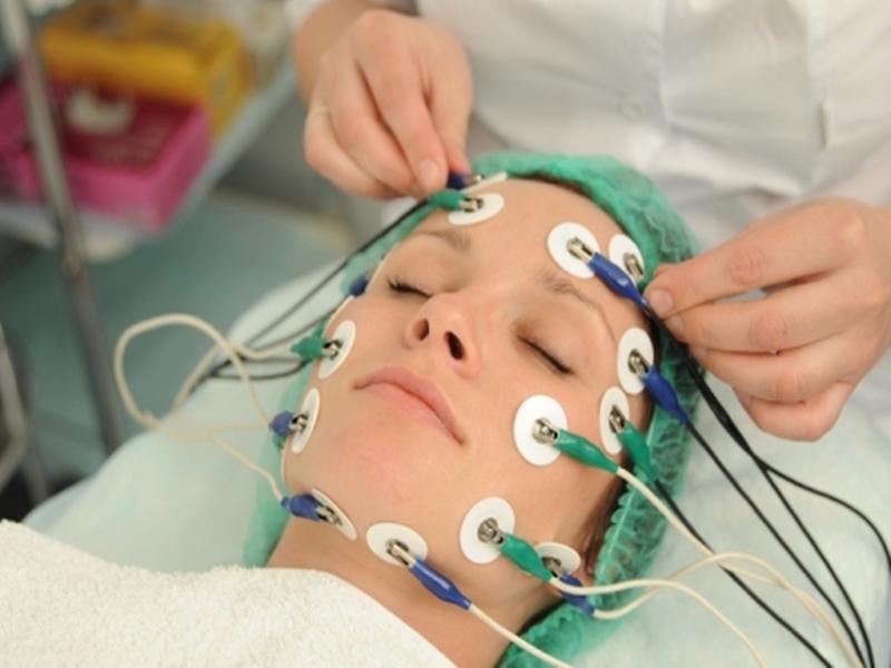 Электростимуляция лицевого нерва