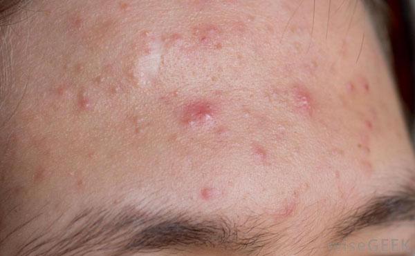 best-antibiotic-for-acne
