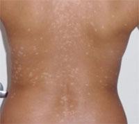 Как лечить белые пятна на коже