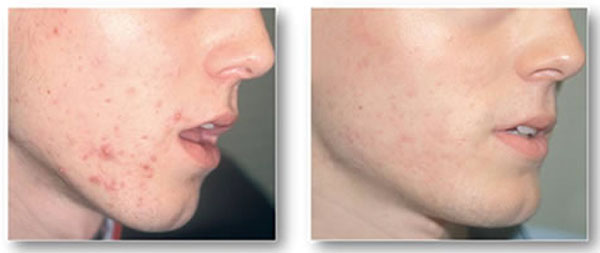 salysilic-before-and-after