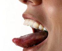 причины бородавки на языке